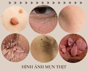 mụn thịt xuất hiện trên các bề mặt da