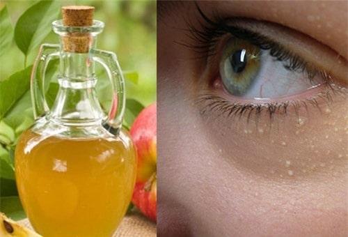 Giấm táo trị mụn thịt